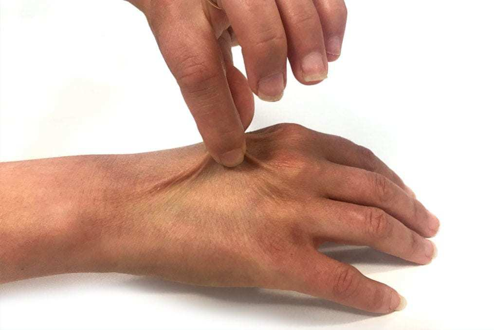 dehydration hand test